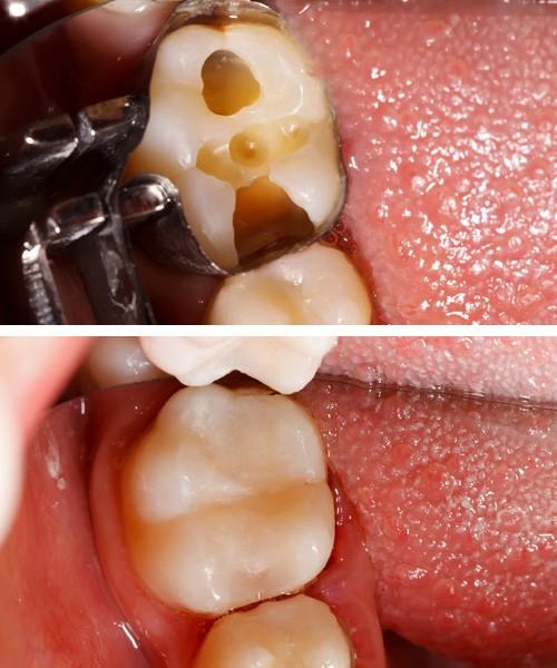 Clínica Dentária Morgado - Dentisteria